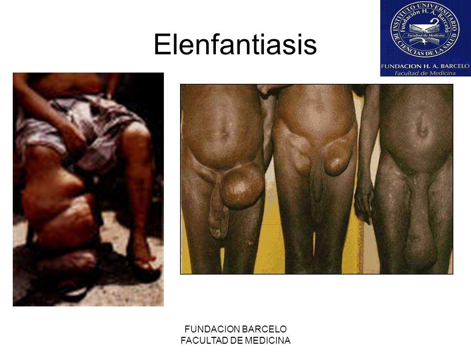 FUNDACION BARCELO FACULTAD DE MEDICINA Elenfantiasis