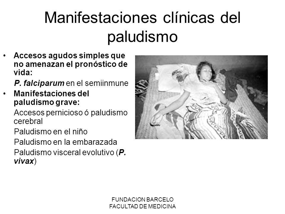 FUNDACION BARCELO FACULTAD DE MEDICINA Manifestaciones clínicas del paludismo Accesos agudos simples que no amenazan el pronóstico de vida: P. falcipa