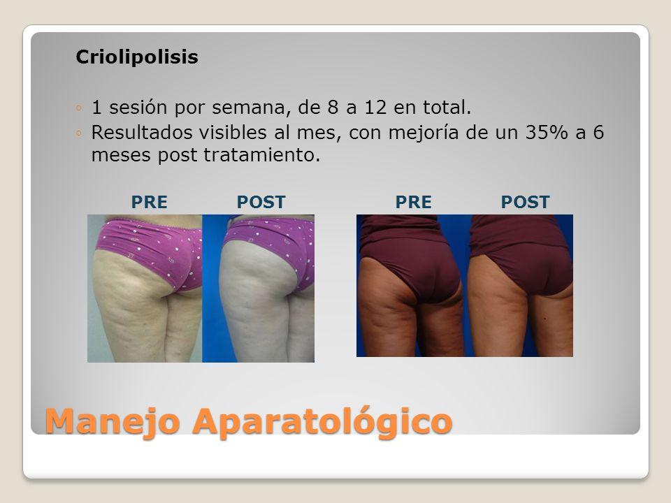 Criolipolisis 1 sesión por semana, de 8 a 12 en total. Resultados visibles al mes, con mejoría de un 35% a 6 meses post tratamiento. Manejo Aparatológ