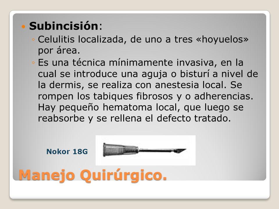 Subincisión: Celulitis localizada, de uno a tres «hoyuelos» por área. Es una técnica mínimamente invasiva, en la cual se introduce una aguja o bisturí