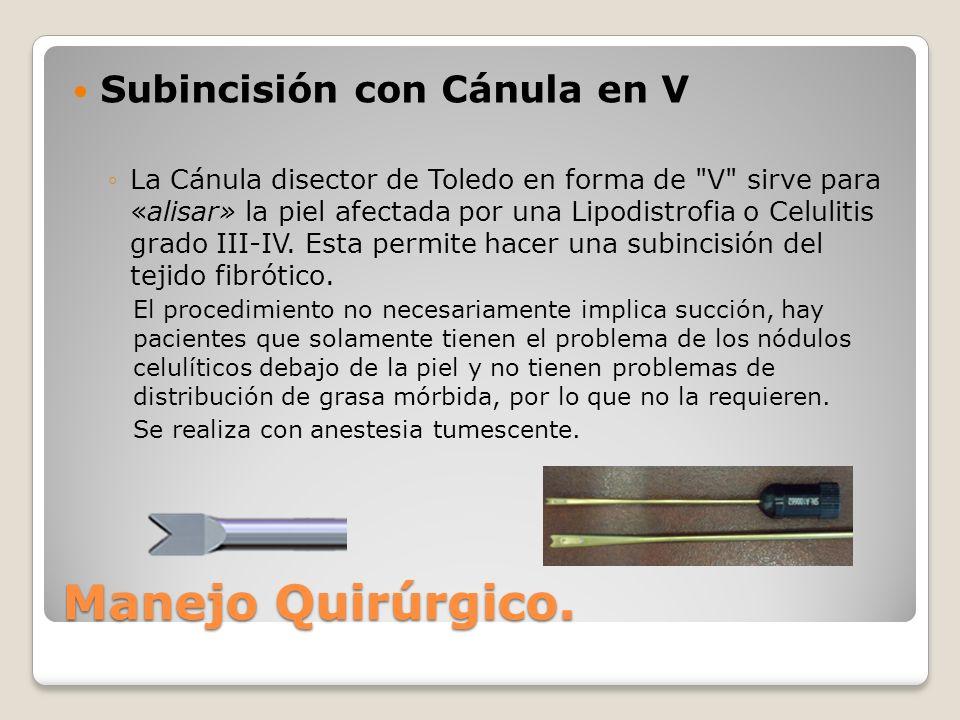Subincisión con Cánula en V La Cánula disector de Toledo en forma de