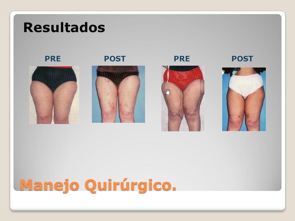 PREPOSTPREPOST Resultados Manejo Quirúrgico.
