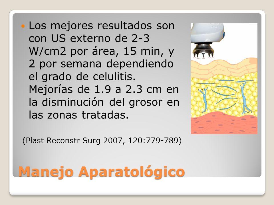 Los mejores resultados son con US externo de 2-3 W/cm2 por área, 15 min, y 2 por semana dependiendo el grado de celulitis. Mejorías de 1.9 a 2.3 cm en