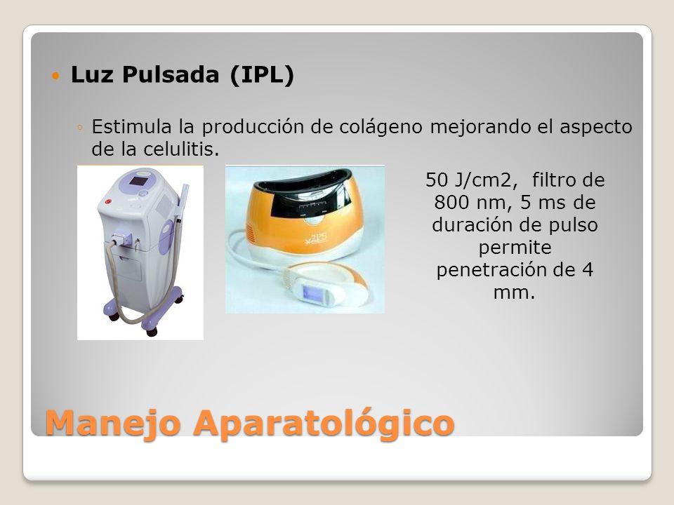 Manejo Aparatológico Luz Pulsada (IPL) Estimula la producción de colágeno mejorando el aspecto de la celulitis. 50 J/cm2, filtro de 800 nm, 5 ms de du