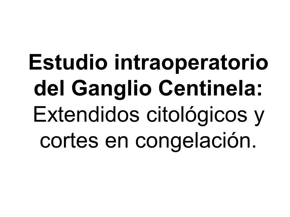 Estudio intraoperatorio del Ganglio Centinela: Extendidos citológicos y cortes en congelación.