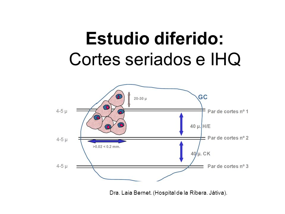 Estudio diferido: Cortes seriados e IHQ Dra. Laia Bernet. (Hospital de la Ribera. Játiva).
