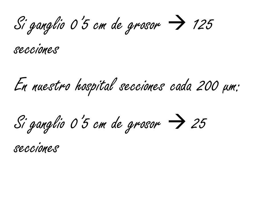 Si ganglio 05 cm de grosor 125 secciones En nuestro hospital secciones cada 200 µm: Si ganglio 05 cm de grosor 25 secciones