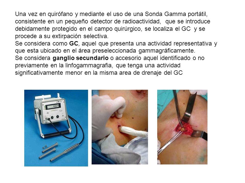 Una vez en quirófano y mediante el uso de una Sonda Gamma portátil, consistente en un pequeño detector de radioactividad, que se introduce debidamente