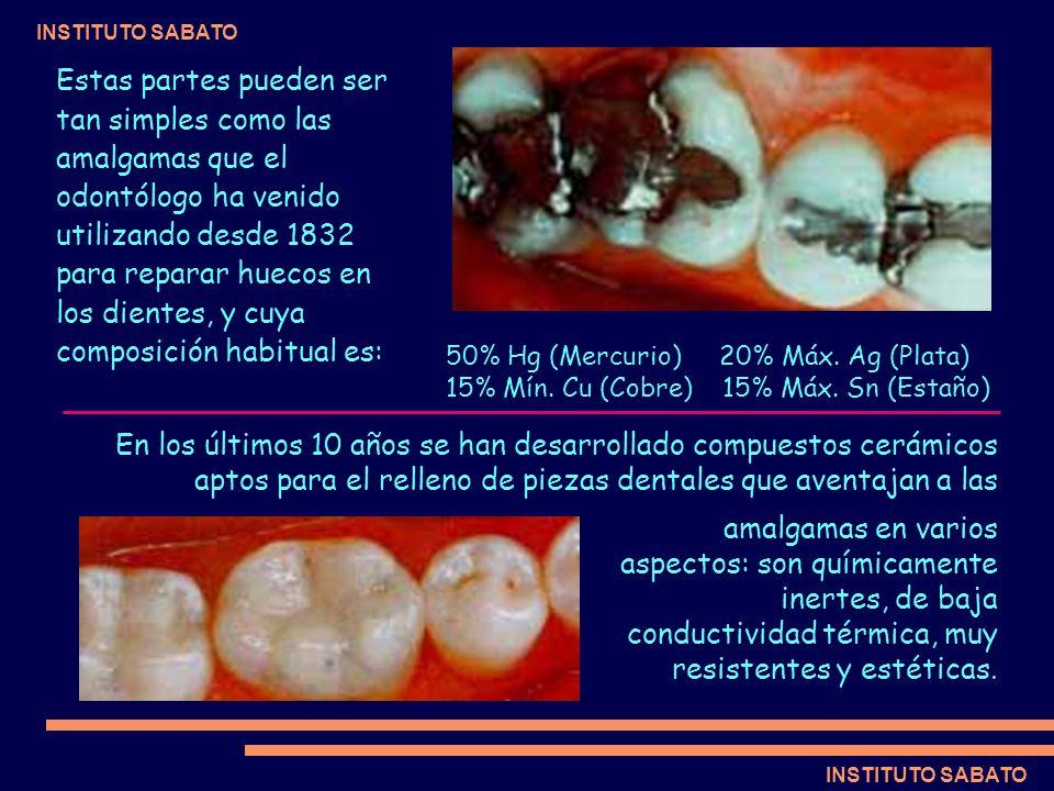 INSTITUTO SABATO Estas partes pueden ser tan simples como las amalgamas que el odontólogo ha venido utilizando desde 1832 para reparar huecos en los d