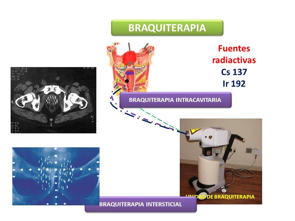 BRAQUITERAPIA Fuentes radiactivas Cs 137 Ir 192 UNIDAD DE BRAQUITERAPIA BRAQUITERAPIA INTRACAVITARIA BRAQUITERAPIA INTERSTICIAL