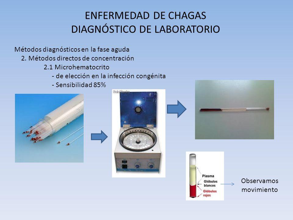 ENFERMEDAD DE CHAGAS DIAGNÓSTICO DE LABORATORIO Métodos diagnósticos en la fase aguda 2. Métodos directos de concentración 2.1 Microhematocrito - de e