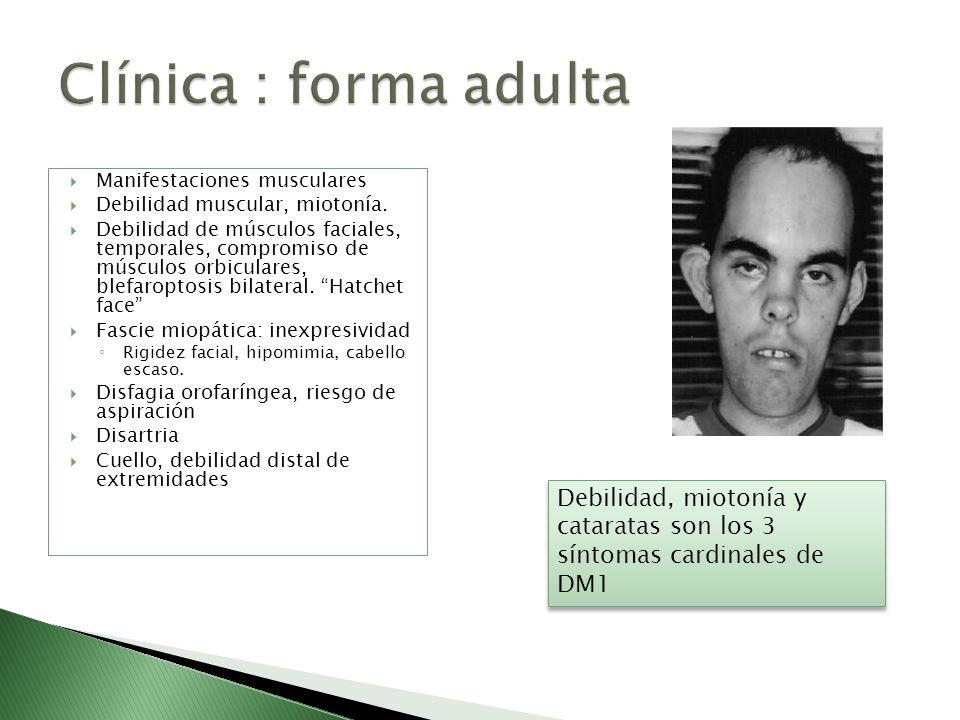 Manifestaciones musculares Debilidad muscular, miotonía. Debilidad de músculos faciales, temporales, compromiso de músculos orbiculares, blefaroptosis