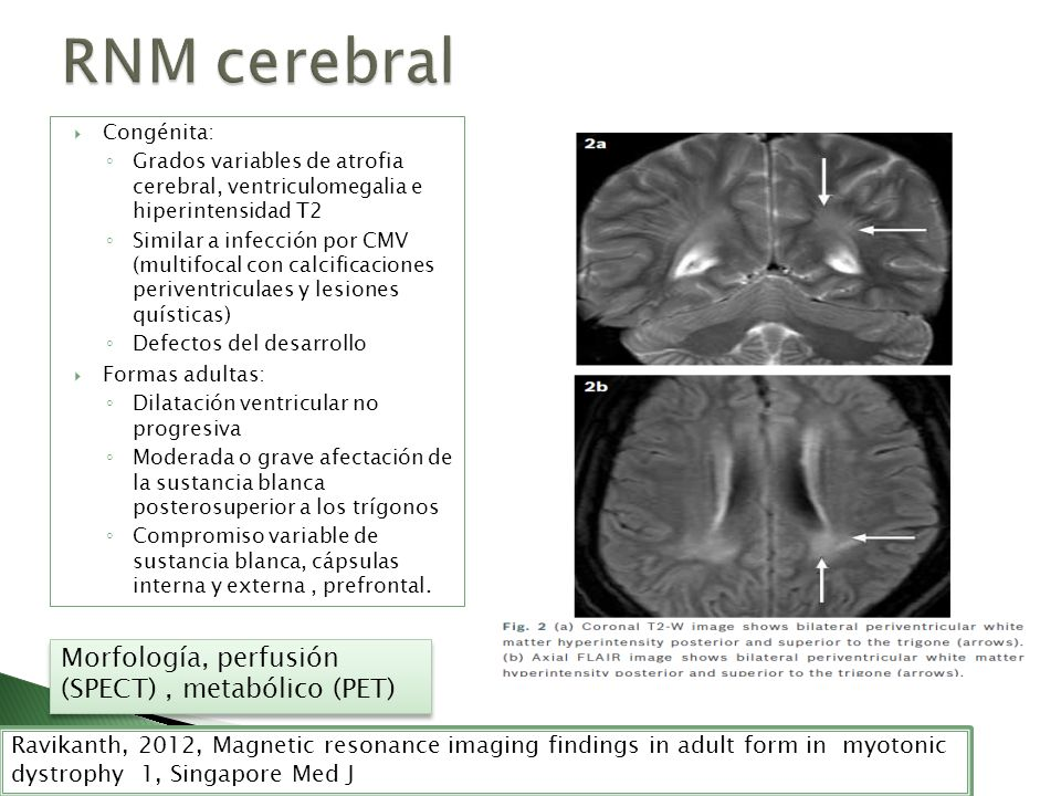 Congénita: Grados variables de atrofia cerebral, ventriculomegalia e hiperintensidad T2 Similar a infección por CMV (multifocal con calcificaciones pe