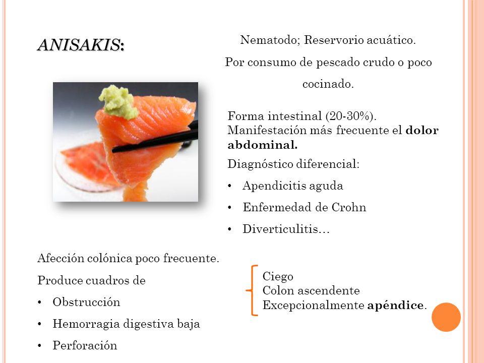 Nematodo; Reservorio acuático.Por consumo de pescado crudo o poco cocinado.
