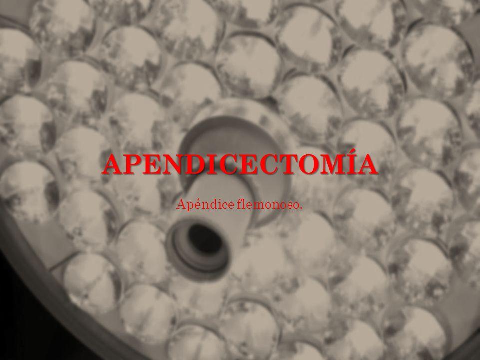 APENDICECTOMÍA Apéndice flemonoso.