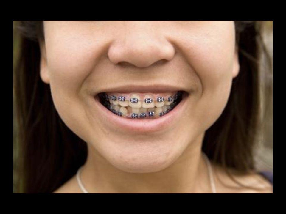 para pagar por gastos dentates no cubierto por tu plan médico