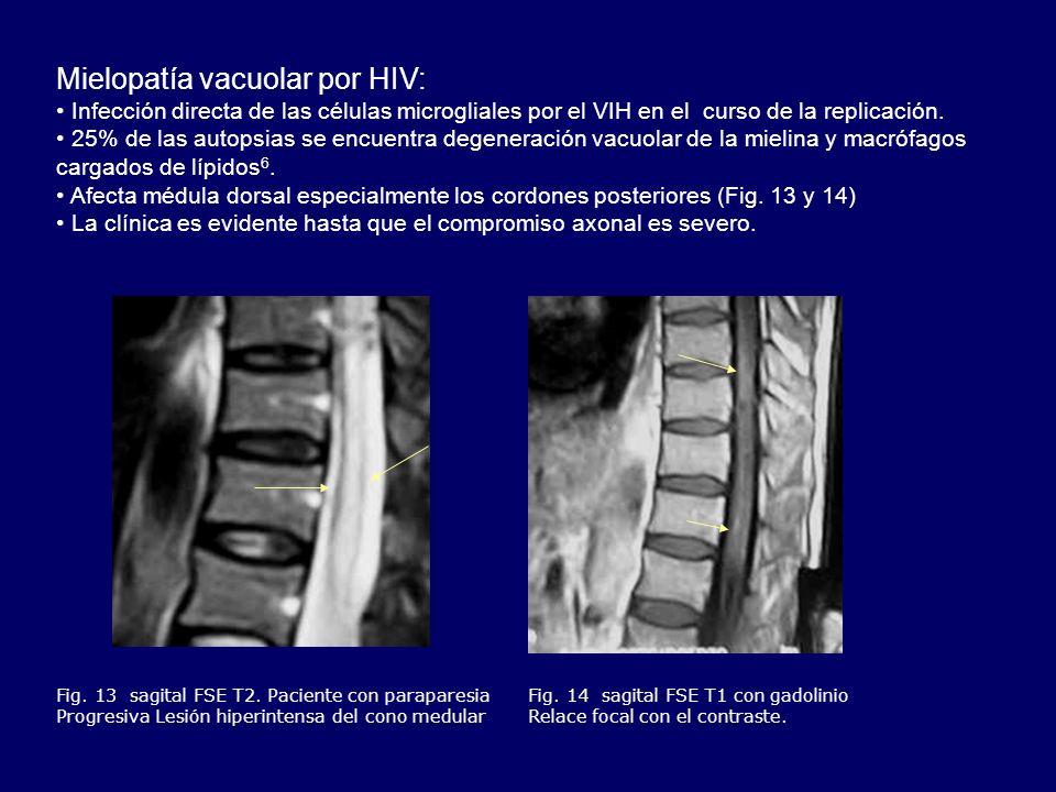 Mielopatía vacuolar por HIV: Infección directa de las células microgliales por el VIH en el curso de la replicación. 25% de las autopsias se encuentra