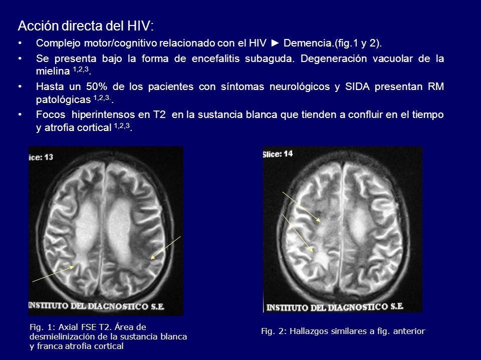 Acción directa del HIV: Complejo motor/cognitivo relacionado con el HIV Demencia.(fig.1 y 2). Se presenta bajo la forma de encefalitis subaguda. Degen