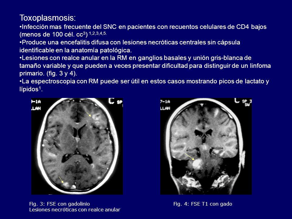 Toxoplasmosis: Infección mas frecuente del SNC en pacientes con recuentos celulares de CD4 bajos (menos de 100 cél. cc 3 ) 1,2,3,4,5. Produce una ence
