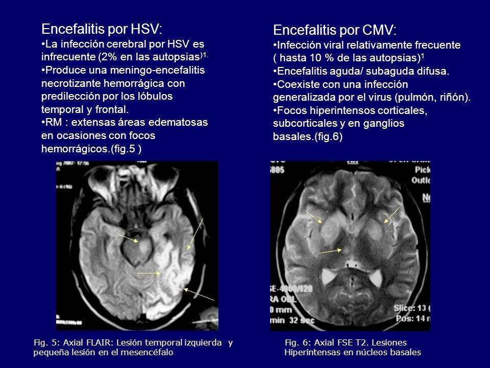 Fig. 5: Axial FLAIR: Lesión temporal izquierda y pequeña lesión en el mesencéfalo Fig. 6: Axial FSE T2. Lesiones Hiperintensas en núcleos basales Ence