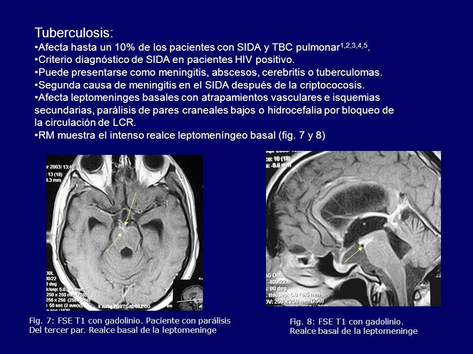 Fig. 7: FSE T1 con gadolinio. Paciente con parálisis Del tercer par. Realce basal de la leptomeninge Fig. 8: FSE T1 con gadolinio. Realce basal de la