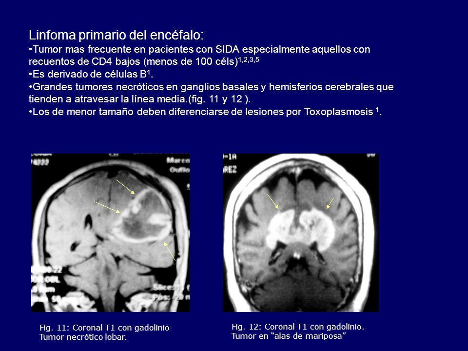 Linfoma primario del encéfalo: Tumor mas frecuente en pacientes con SIDA especialmente aquellos con recuentos de CD4 bajos (menos de 100 céls) 1,2,3,5