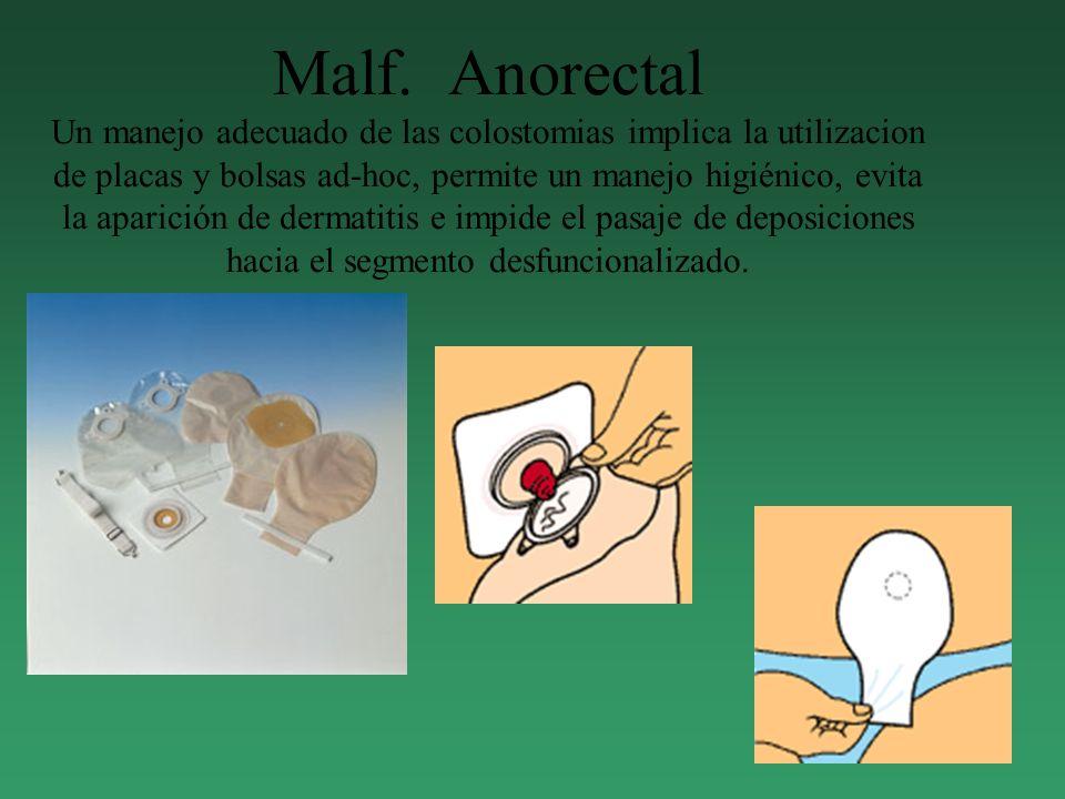Malf. Anorectal Un manejo adecuado de las colostomias implica la utilizacion de placas y bolsas ad-hoc, permite un manejo higiénico, evita la aparició