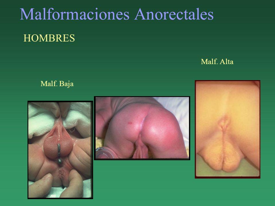 Malformaciones Anorectales HOMBRES Malf. Alta Malf. Baja