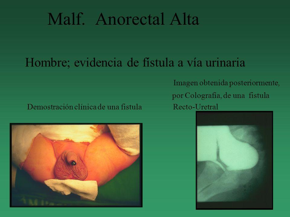 Malf. Anorectal Alta Hombre; evidencia de fístula a vía urinaria Imagen obtenida posteriormente, por Colografía, de una fistula Demostración clínica d