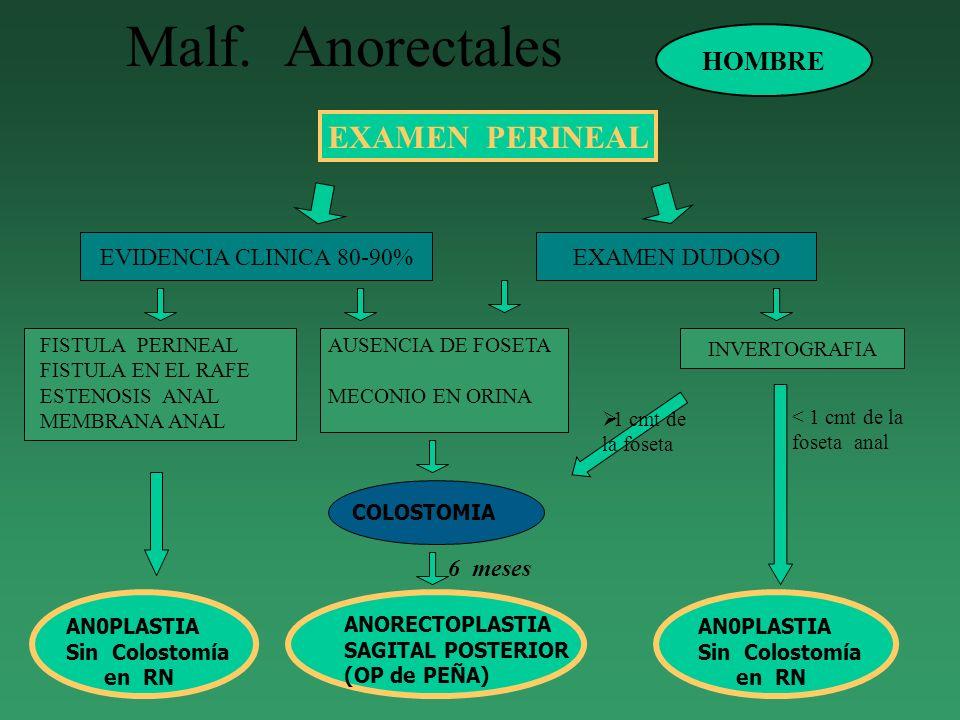 Malf. Anorectales EXAMEN PERINEAL EVIDENCIA CLINICA 80-90%EXAMEN DUDOSO INVERTOGRAFIA HOMBRE FISTULA PERINEAL FISTULA EN EL RAFE ESTENOSIS ANAL MEMBRA