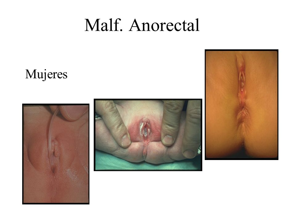 Malf. Anorectal Mujeres