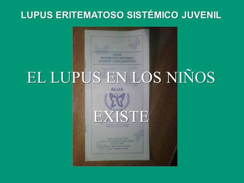 EL LUPUS EN LOS NIÑOS EXISTE LUPUS ERITEMATOSO SISTÉMICO JUVENIL
