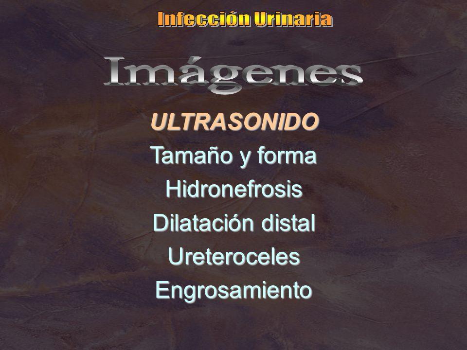 ULTRASONIDO Tamaño y forma Hidronefrosis Dilatación distal UreterocelesEngrosamiento