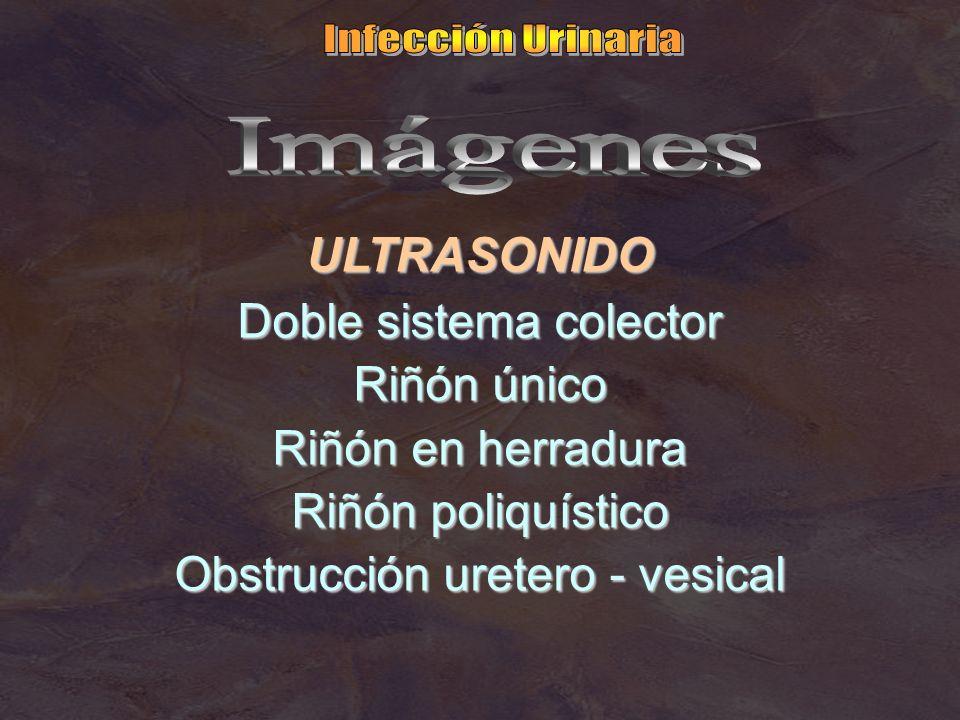 ULTRASONIDO Doble sistema colector Riñón único Riñón en herradura Riñón poliquístico Obstrucción uretero - vesical
