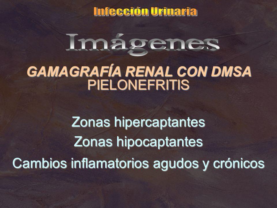 GAMAGRAFÍA RENAL CON DMSA PIELONEFRITIS Zonas hipercaptantes Zonas hipocaptantes Cambios inflamatorios agudos y crónicos
