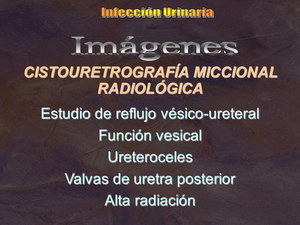 CISTOURETROGRAFÍA MICCIONAL RADIOLÓGICA Estudio de reflujo vésico-ureteral Función vesical Ureteroceles Valvas de uretra posterior Alta radiación