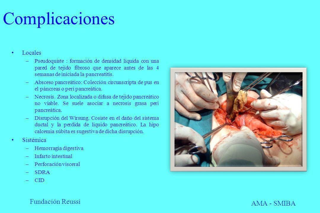Fundación Reussi AMA - SMIBA Complicaciones Locales –Pseudoquiste : formación de densidad liquida con una pared de tejido fibroso que aparece antes de