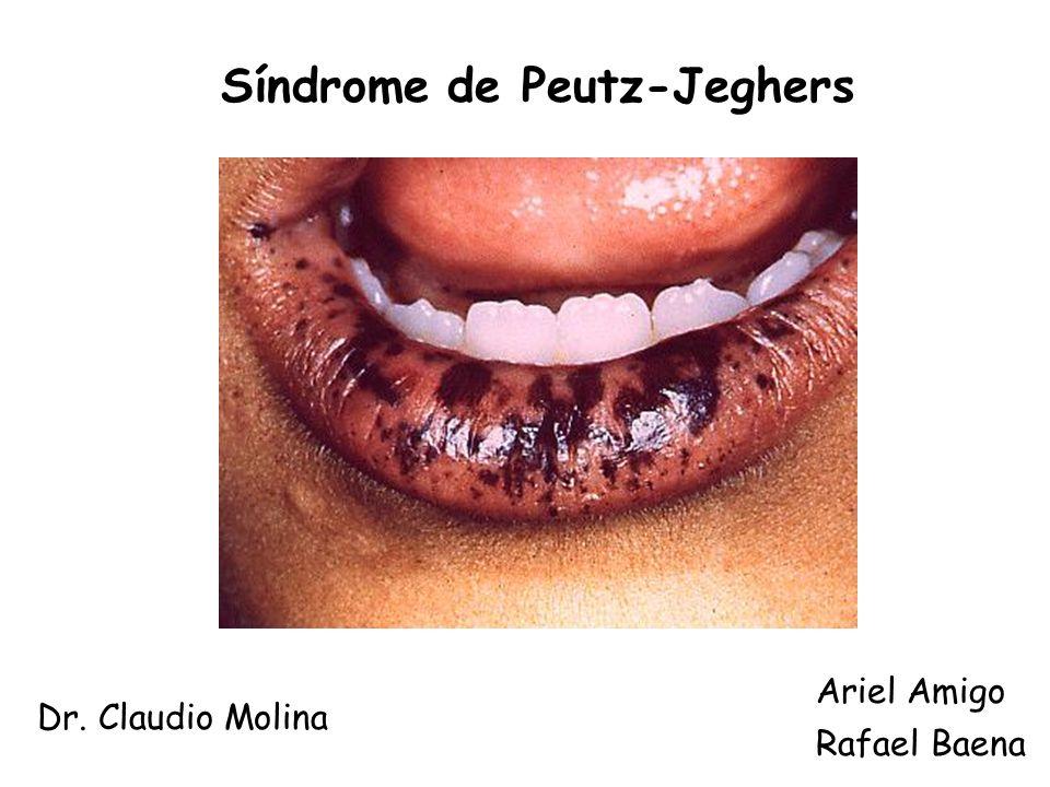 Síndrome de Peutz-Jeghers Rafael Baena Dr. Claudio Molina Ariel Amigo