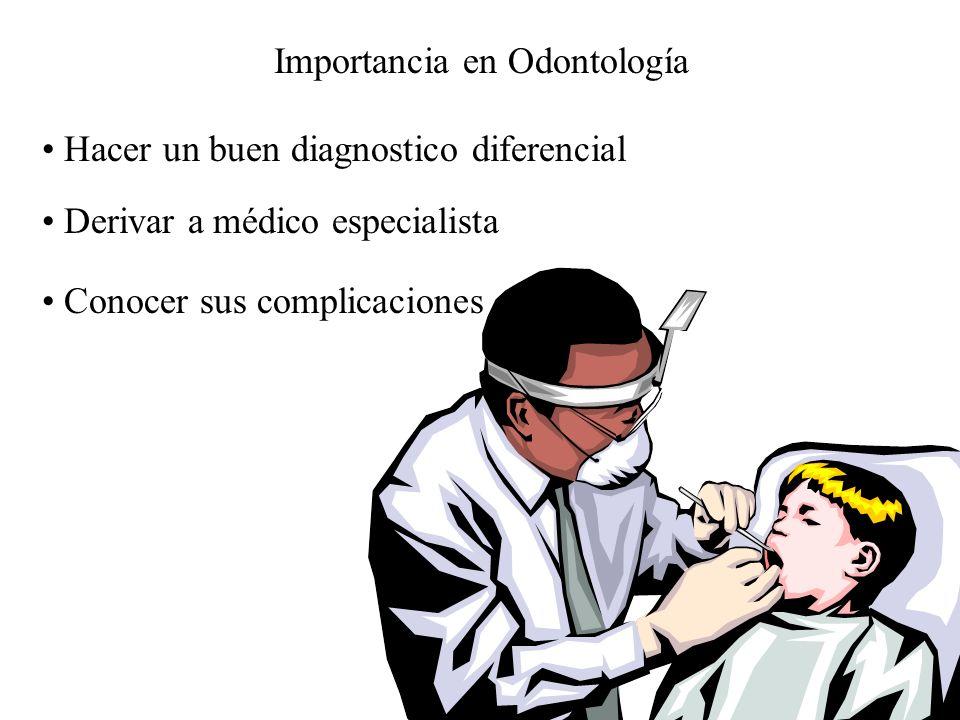 Importancia en Odontología Hacer un buen diagnostico diferencial Derivar a médico especialista Conocer sus complicaciones