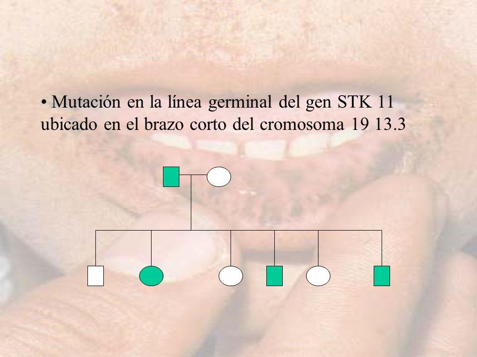 Mutación en la línea germinal del gen STK 11 ubicado en el brazo corto del cromosoma 19 13.3