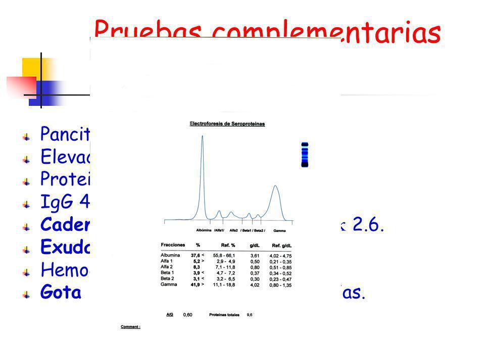 Pruebas complementarias Pancitopenia Elevación RFA Proteinograma similar. IgG 4211, IgA e IgM normal. Cadenas ligeras en orina 0.41 y 2.6. Exudado far