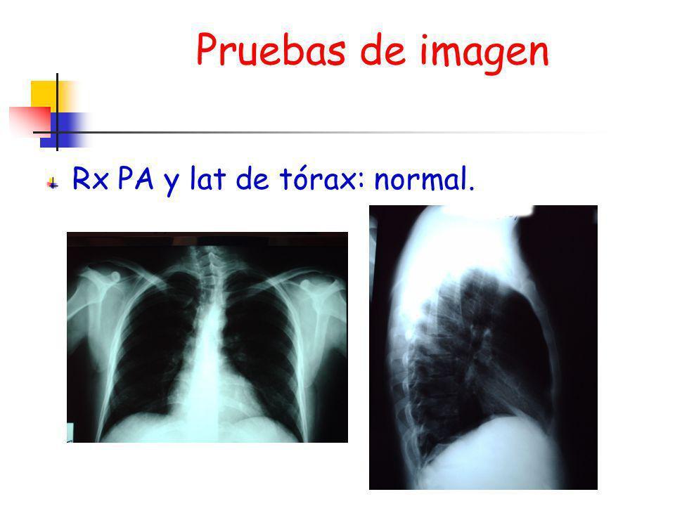 Pruebas de imagen Rx PA y lat de tórax: normal.