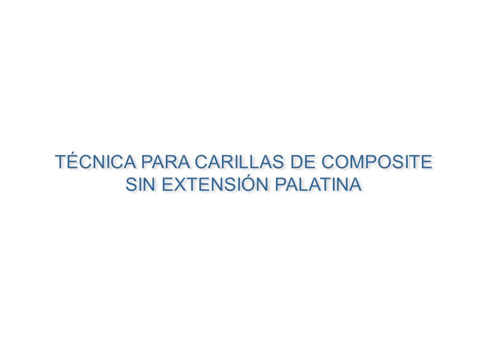 TÉCNICA PARA CARILLAS DE COMPOSITE SIN EXTENSIÓN PALATINA TÉCNICA PARA CARILLAS DE COMPOSITE SIN EXTENSIÓN PALATINA
