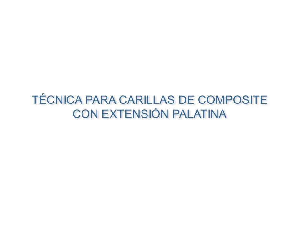 TÉCNICA PARA CARILLAS DE COMPOSITE CON EXTENSIÓN PALATINA TÉCNICA PARA CARILLAS DE COMPOSITE CON EXTENSIÓN PALATINA