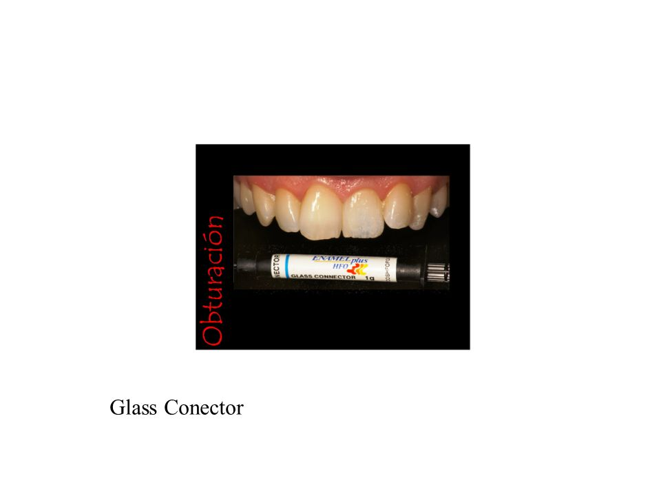 Glass Conector
