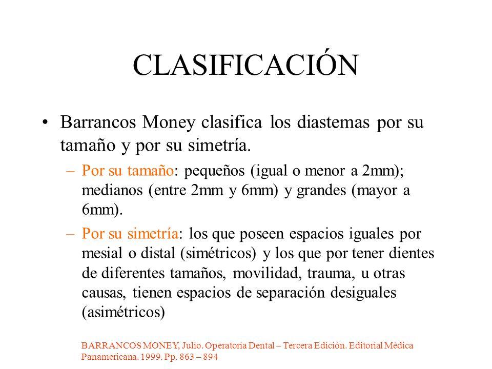 CLASIFICACIÓN Barrancos Money clasifica los diastemas por su tamaño y por su simetría. –Por su tamaño: pequeños (igual o menor a 2mm); medianos (entre