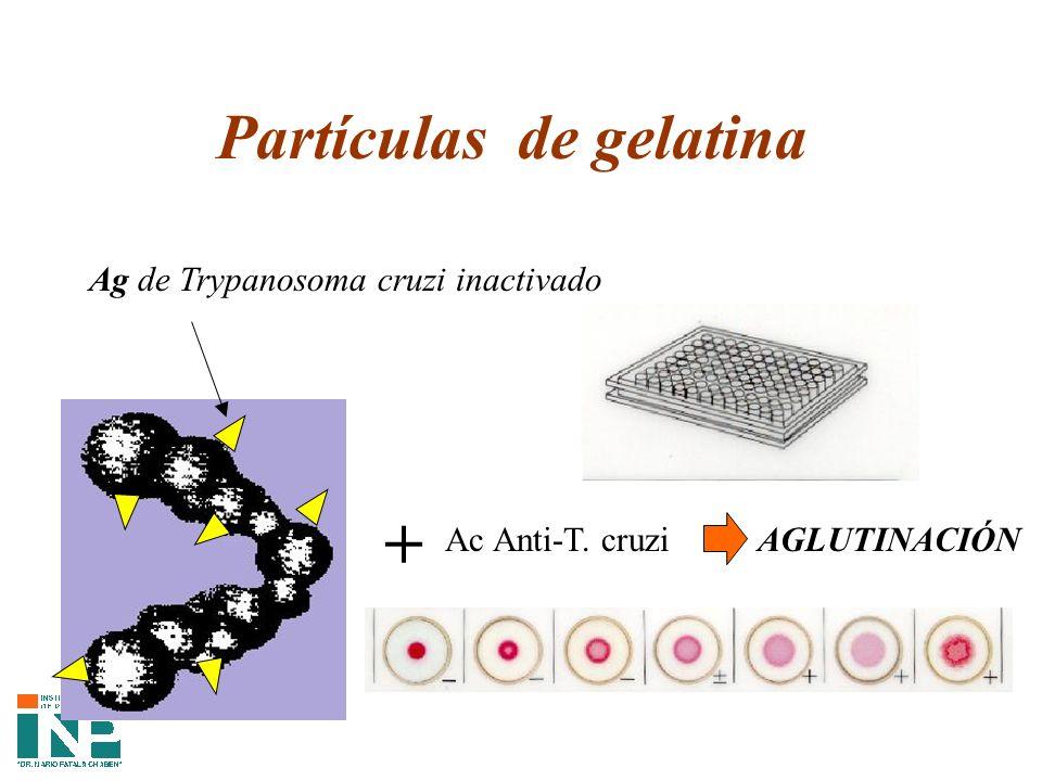 Partículas de gelatina Ag de Trypanosoma cruzi inactivado + Ac Anti-T. cruziAGLUTINACIÓN