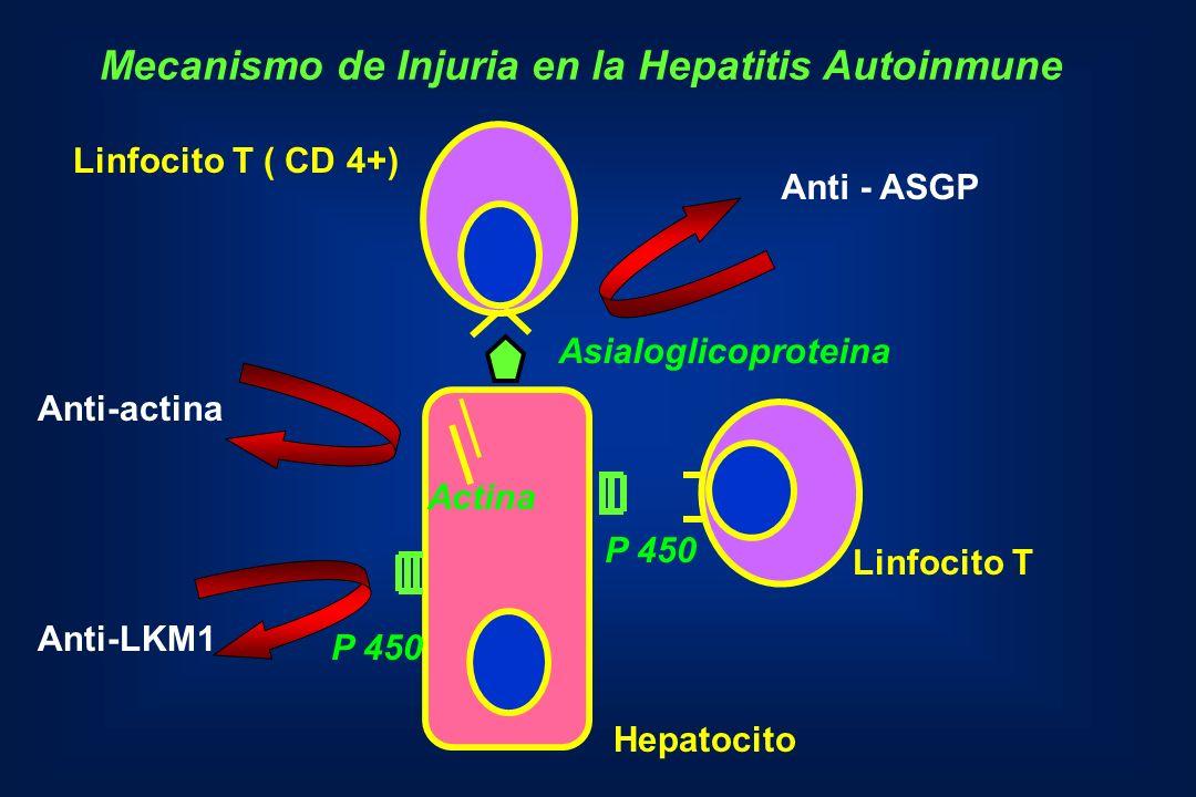 Linfocito T ( CD 4+) Linfocito T Hepatocito Asialoglicoproteina Actina P 450 Anti-actina Anti-LKM1 Mecanismo de Injuria en la Hepatitis Autoinmune Ant