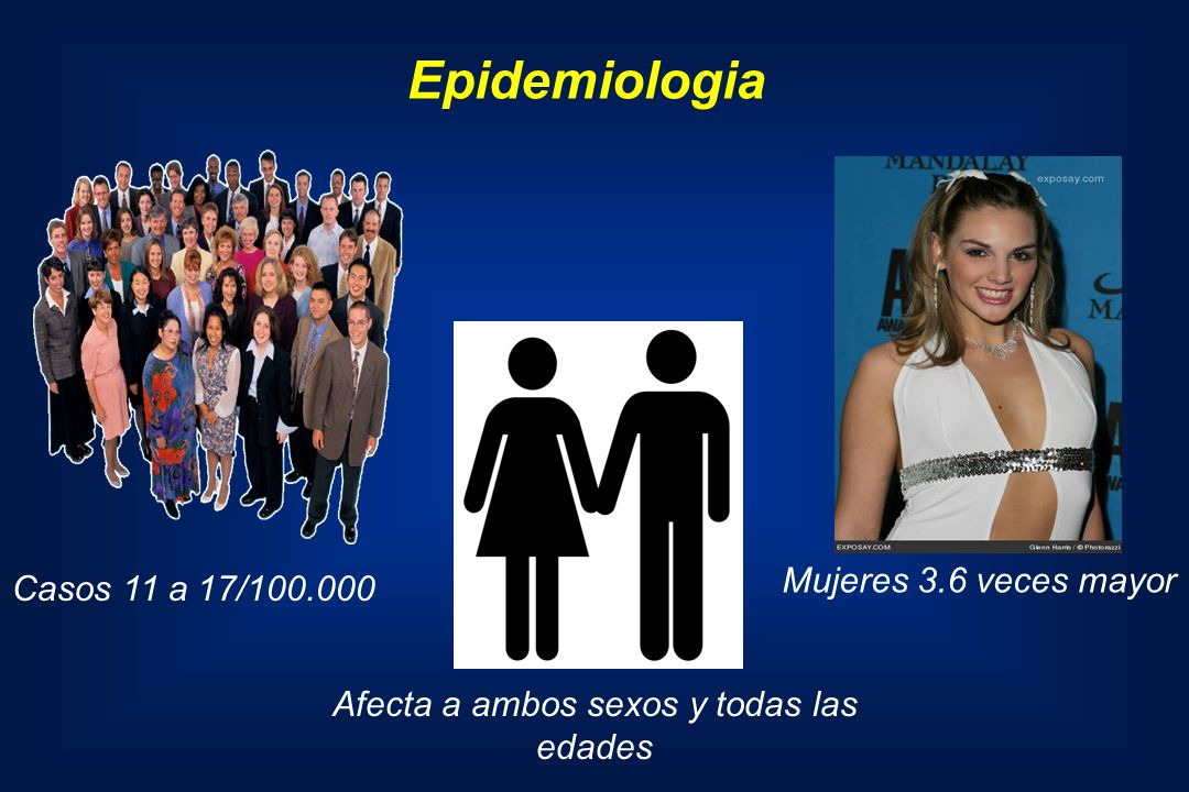 Casos 11 a 17/100.000 Afecta a ambos sexos y todas las edades Mujeres 3.6 veces mayor Epidemiologia