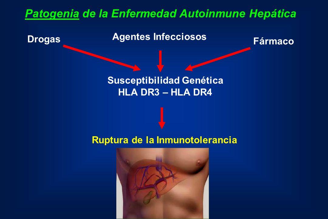 Patogenia de la Enfermedad Autoinmune Hepática Agentes Infecciosos Fármaco Drogas Susceptibilidad Genética HLA DR3 – HLA DR4 Ruptura de la Inmunotoler